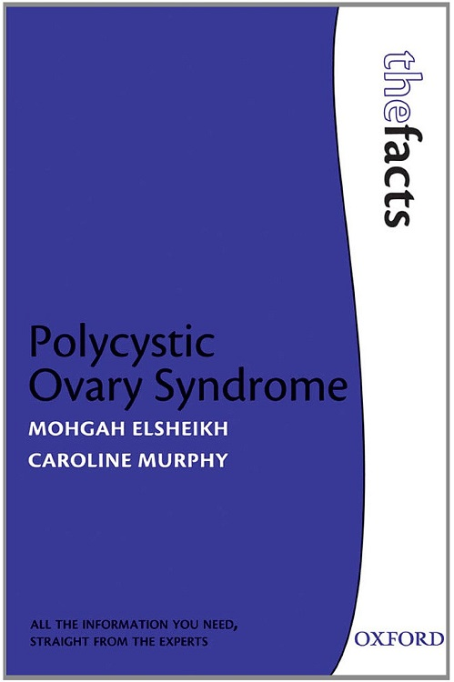 PCOS Book – Polycystic Ovary Syndrome (The Facts)