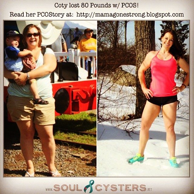 PCOS weight loss inspiration!! #pcos #pcosdiet #pcoslife #pcosweightloss #pcosfight  #soulcyster #soulcysters #pcoswarrior #pcosfighter