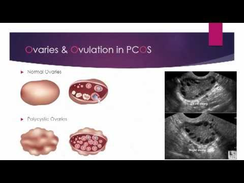 {VIDEO} PCOS and the menstrual cycle