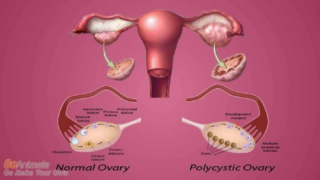 {VIDEO} How to Permanently Cure Polycystic Ovary Syndrome (PCOS)?