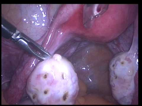 {VIDEO} Laparoscopy, Polycystic Ovarian Syndrome, PCOS, PCOD
