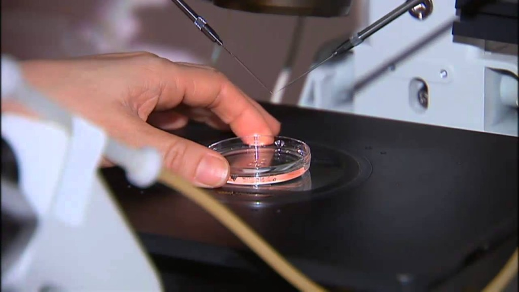 {VIDEO} New fertility treatment for PCOS patients